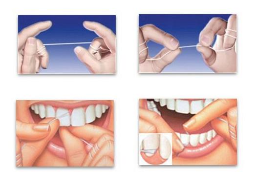 Dentino - Τρόπος χρήσης του οδοντικού νήματος