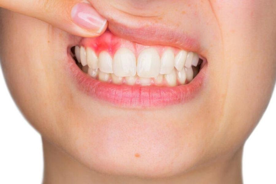 Αιτίες αιμορραγίες των ούλων